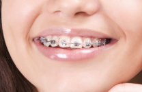 orthodontist in West Roxbury